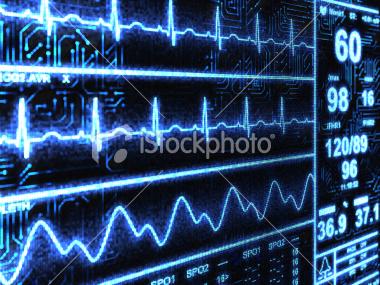 cardiac-monitor